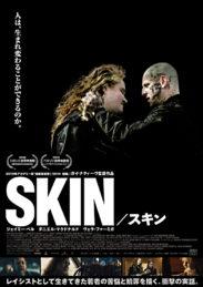 SKIN スキン